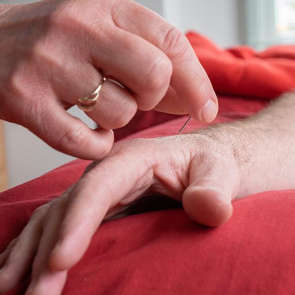 Acupuncture Christchurch